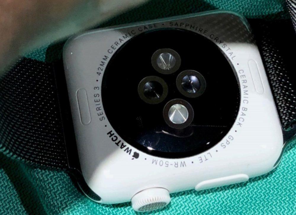 Apple Watch Ceramique Facade Arriere Rayures 1000x728 Il porte plainte contre Apple concernant des rayures sur son Apple Watch Series 3