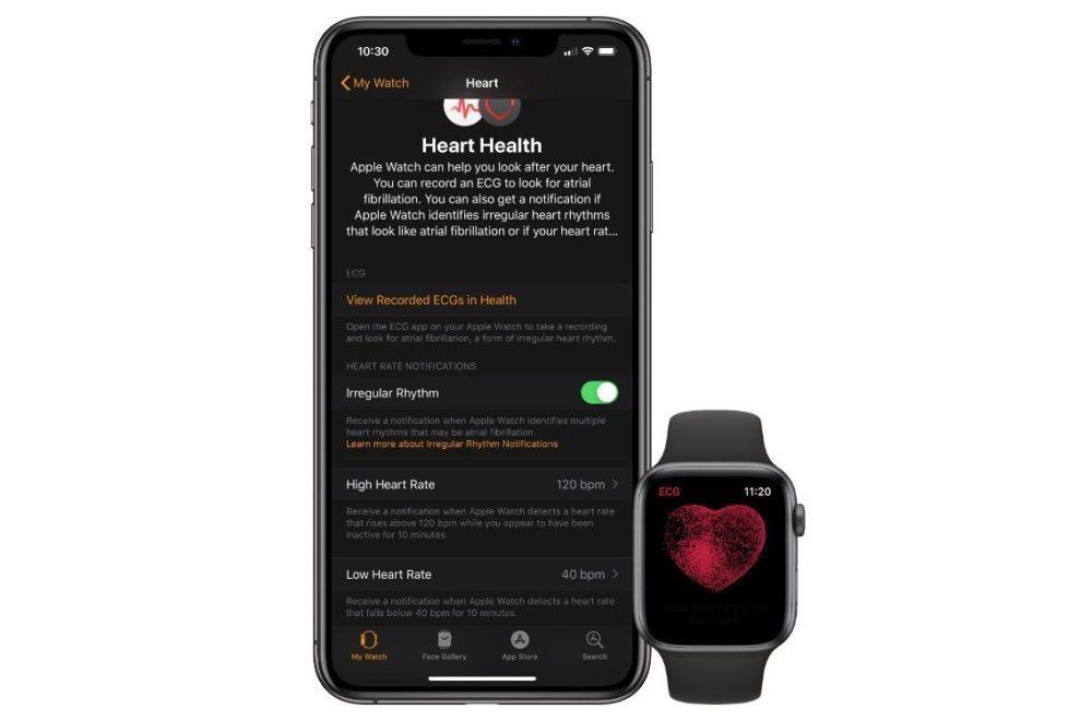 apple watch series 4 ecg 1000x660 watchOS 5.2 version finale publiée : électrocardiogramme disponible dans 20 pays, dont la France