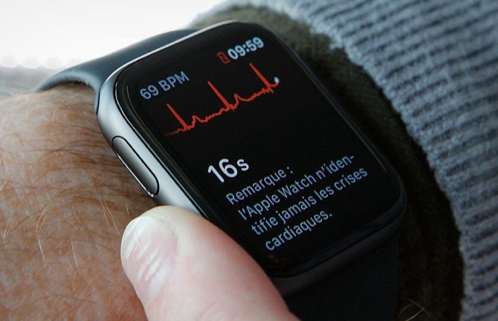 ECG Apple Watch Series 4 1000x645 Apple Watch : le lancement de lélectrocardiogramme (ECG) au Canada est pour bientôt