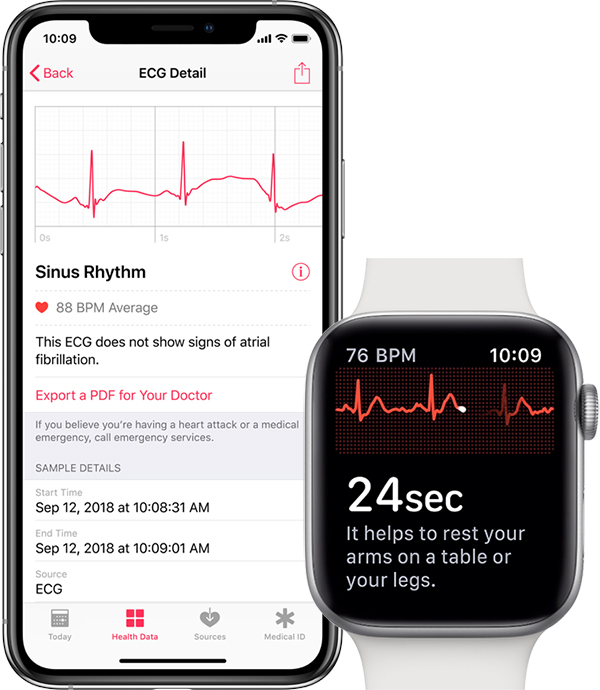 apple ecg export pdf medecin Comment faire un ECG avec l'Apple Watch