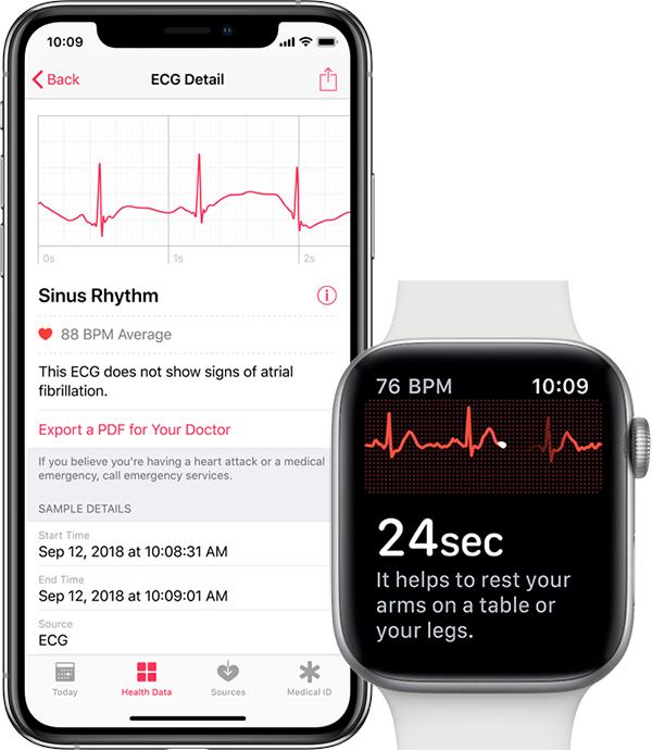 apple ecg export pdf medecin Comment faire un ECG avec l'Apple Watch