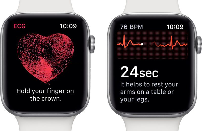 apple watch ecg Comment faire un ECG avec l'Apple Watch